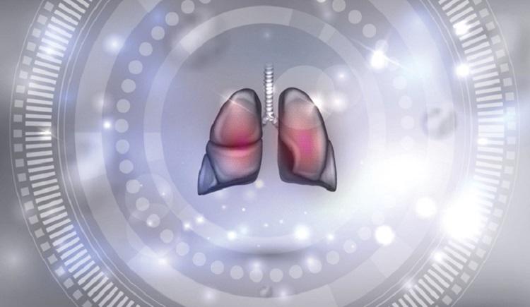 AI algorithm automates analysis of cystic fibrosis scans